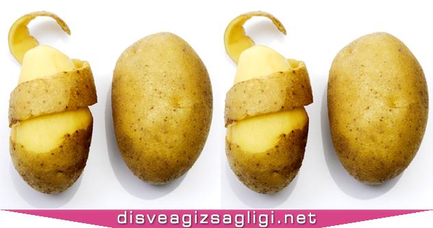patates, soyulmuş patates, yarım soyulmuş patates, patates ve diş ağrısı,