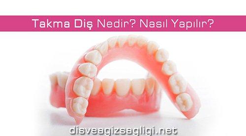 takma diş, takma diş nasıl yapılır,