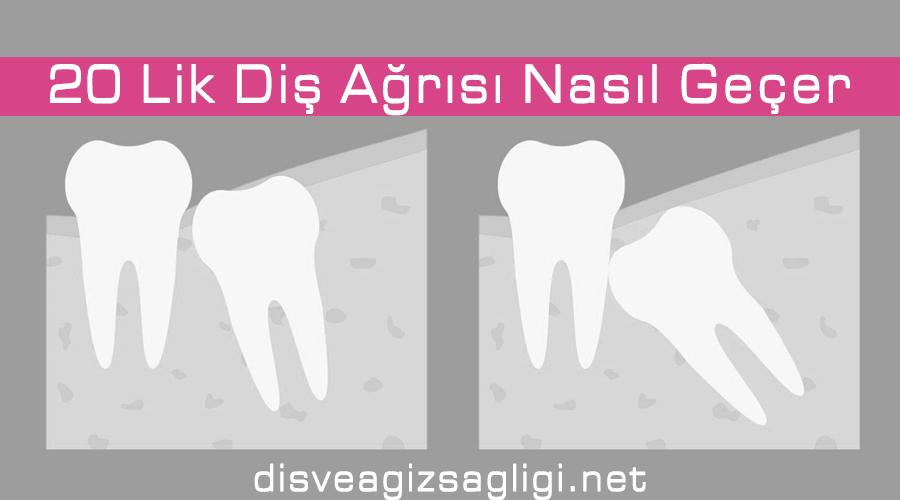 diş bozukluğu, 20 yaş dişleri, yamuk diş, diş rontgeni,