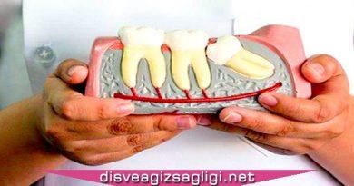 yirmilik diş çıkma, yirmilik diş, 20 lik diş,