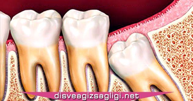 yirmilik diş çıkması, yirmilik diş,